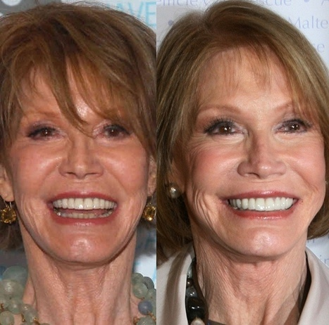 Mary Tyler Moore plastic surgery before and after | Celebrity Plastic Surgery | Scoop.it