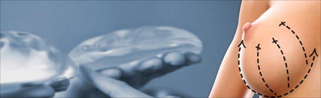 Cirugía plástica en el escote | Cirujía Plástica | Scoop.it