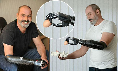 The Next Wave In Prosthetics – 3D Printing | positive cultures | Scoop.it