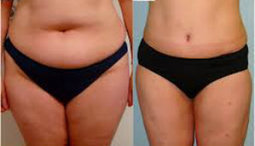 Choosing the Right Type of Liposuction - Articles.org   CHOOSING THE RIGHT TYPE OF LIPOSUCTION   Scoop.it