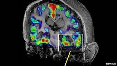 Alzheimer's brain scan advances | Interesting Reading | Scoop.it