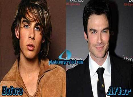 Ian Somerhalder Plastic Surgery Before and After Photos — Plastic Surgery Facts | Celebrity Plastic Surgery News | Scoop.it