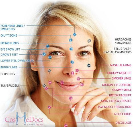 Botox Anti Wrinkle Treatmnet at Cosmedocs UK   Botox   Scoop.it