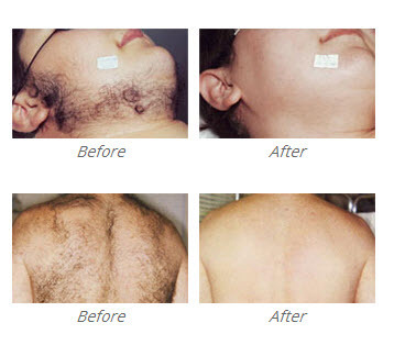 Laserworks Clinic | New Sourth Wales, Australia | How much does a Laser Hair Removal Costs? | Scoop.it