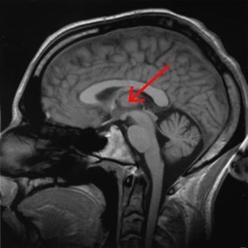 Brain Changes Linked to Prematurity May Explain Risk of Neurodevelopmental Disorders | Occupational Therapy, Neurodevelopment, Assistive Technology and other stuff | Scoop.it