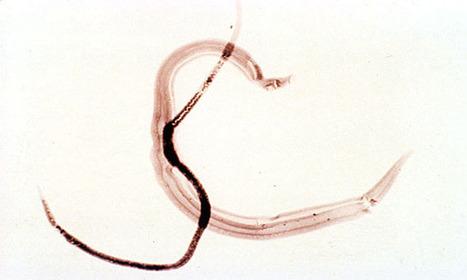 Respuesta inmune a virus y parásitos. | Mecanismos de evasión inmune utilizados por los parásitos. LILIANA LUNA. ENEO-UNAM 2204 Con la asesoría de Victor Valverde. | Scoop.it