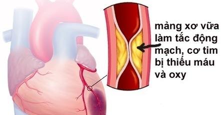Nguyên nhân gây bệnh nhồi máu cơ tim là gì? ~ Bệnh tim mạch: Suy tim - Nhồi máu cơ tim - Hở van tim- Tim to - Rối loạn nhịp tim... | Kiến thức sức khỏe dịch vụ | Scoop.it