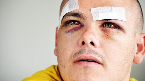 """""""Ils ont vu l'écharpe et les coups sont partis"""" : un abonné de l'OL raconte son agression par des fans de l'OM   Mauvaises pratiques dans le sport pro   Scoop.it"""