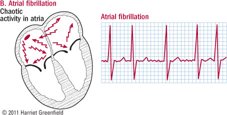 Trends in Atrial Fibrillation in US, 2000-10 | Heart and Vascular Health | Scoop.it