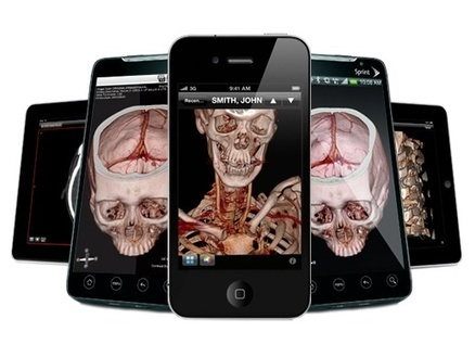 FDA clears ResolutionMD diagnostic imaging app for all image modalities except mammography | mobihealthnews | Brain Methods and Others | Scoop.it