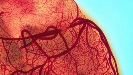 Coffee linked to 'cleaner' arteries | Nutrition Today | Scoop.it