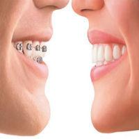Wisdom Teeth Removal Cost | Wisdom Teeth Sydney | Scoop.it