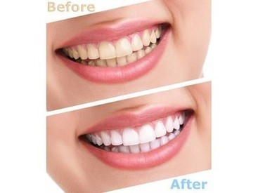 Enjoy bright and beautiful smile with lowered teeth whitening cost India | Axiss Dental | Scoop.it