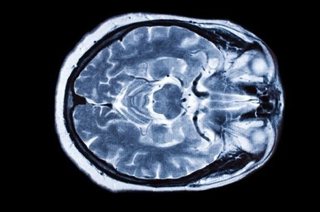Is Depression a Symptom of Parkinson's Disease? | Cognition and Brain diseases | Scoop.it