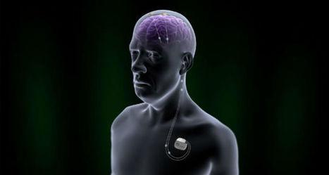 FDA Approves New Deep Brain Stimulation Device for Parkinsons   #ALS AWARENESS #LouGehrigsDisease #PARKINSONS   Scoop.it