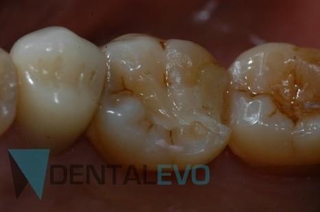 CAD-CAM inlay made by Aadva lab scanner and Cerasmart Block - DentalEvo - The new era of dentistry | IMAGINA Dental | Scoop.it