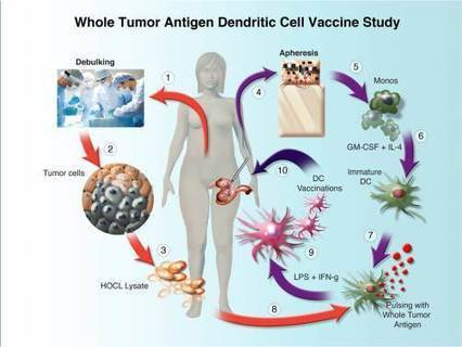 """Adoptive T-Cell"" Immunotherapy Shows Activity Against Advanced Ovarian Cancer in Phase I Study 
