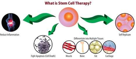 Stem Cell Therapy in India Is Cost Effective Treatment Overall Disease | Surgical India: Acess the various networks of surgical platforms established in India | Scoop.it