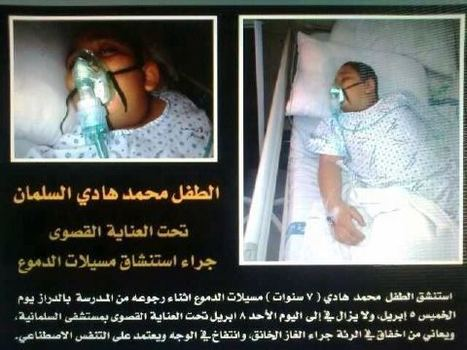 Al-Khalifa terrorists have attacked another child with toxic gas! | Human Rights and the Will to be free | Scoop.it