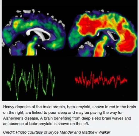Mal dormir : le premier signe d'Alzheimer ?   Contrepoints   La Boîte à Neurones d'A3CV   Scoop.it