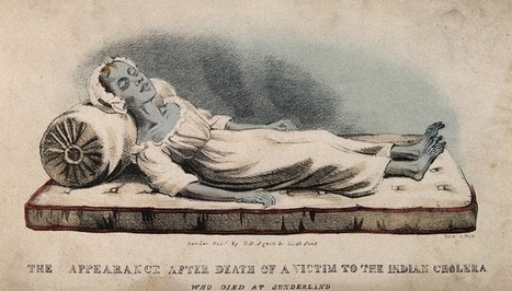 The Origins of Intravenous Fluids - Body Horrors | Sunday Reads | Scoop.it