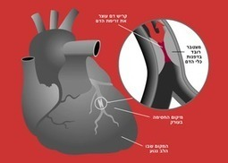 New scan can identify those who at high risk of a heart attack | Life ... | Scans for Heart Diseases | Scoop.it