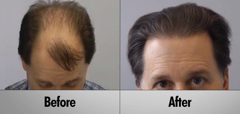 Important things You Should know before Hair Transplant   Royal Cosmetic Surgery   Scoop.it