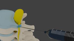 Chicago Pain Clinics Review: Premier Pain Specialists | Pain Management | Scoop.it