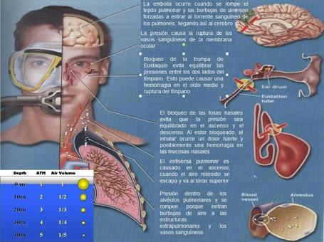 Fisiología del buceo: HIPERBARISMO