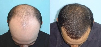 ensuring higher success costs of hair transplantation in india | Hair Transplant in Kolkata | Scoop.it