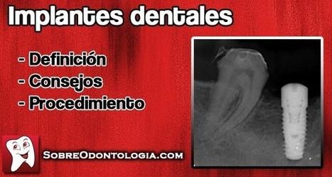 Implantes dentales: Definición y consejos   Blog de Odontología   Odontología   Scoop.it