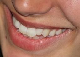 4 Cara Memutihkan Gigi Menggunakan Pisang | BISNIS 4LIFE TRANSFER FACTOR | Scoop.it