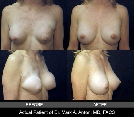 5 Breast Augmentation Recovery Tips: What To Know Before Surgery   Plastic Surgery & Skin Care   Scoop.it