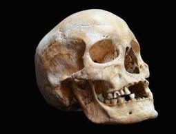 Medieval bones yield 1000-year-old leprosy genome - health - 13 June 2013 - New Scientist | Scientific and Technological Innovation | Scoop.it