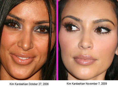 Before and After: Cosmetic surgery | Cosmetic Surgery | Scoop.it