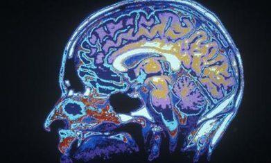 Near-death experiences: the brain's last hurrah: Prof. Anil Seth | Pschology | Scoop.it