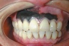 Man Develops Rare Case of Melanoma in the Gums | Podiatry and Dermatology News | Scoop.it