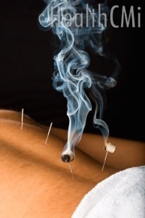 #Acupuncture, #Moxa, Cupping And #Herbs Relieve #Asthma | Limitless learning Universe | Scoop.it