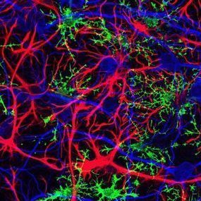Human Brain Cells Make Mice Smart | Amazing Science | Scoop.it