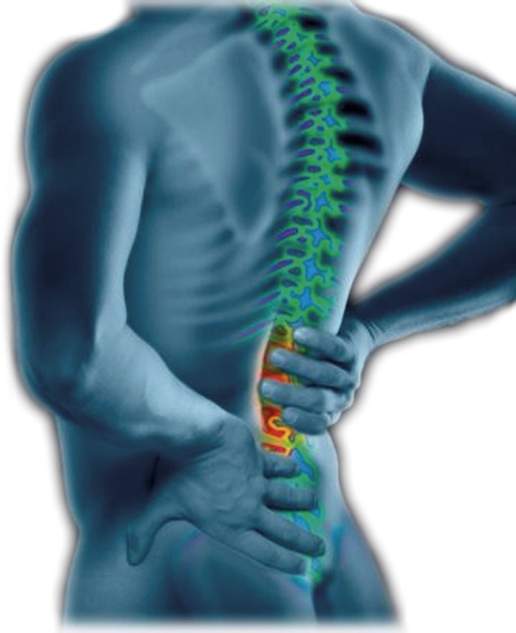25 Natural Ways To Relieve Back Pain Today | Blog posts | Scoop.it