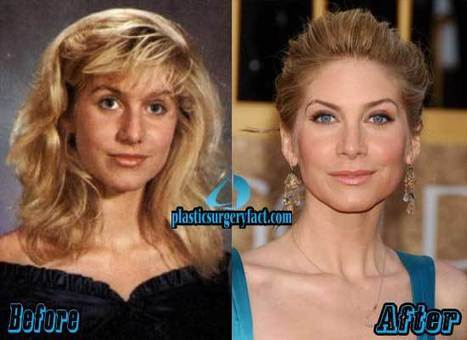 Elizabeth Mitchell Plastic Surgery Before and After Photos — Plastic Surgery Facts | Celebrity Plastic Surgery News | Scoop.it