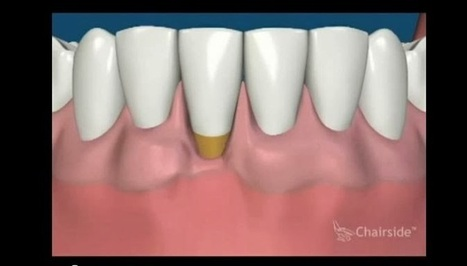 Athens, GA Dentist Shares Video Animation of Gum Surgery for ... | Budget -Friendly Periodontal Treatments & Cosmetic Dentistry in Athens, Greece | Scoop.it