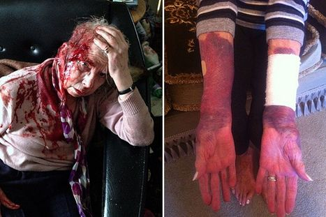 Jean Taylor OAP attack: Bristol pensioner and Rotherham woman both left bloodied in separate doorstep assault | Welfare, Disability, Politics and People's Right's | Scoop.it