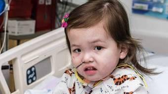 Girl dies after rare surgery | Health Studies Updates | Scoop.it