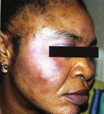 Santé / Blanchissement de la peau : Quand la dépigmentation tue | Depigmentation en Afrique de l'ouest | Scoop.it