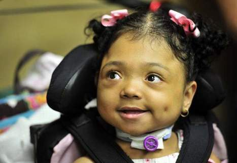 New drug gives growth to girl who had no bones - Mansfield News Journal | Rare Diseases | Scoop.it