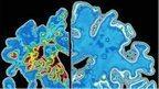 Dementia deaths 'more common'   Memory Loss   Scoop.it