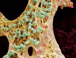 Cadaver stem cells offer new hope of life after death - health - 21 December 2012 - New Scientist | Longevity science | Scoop.it
