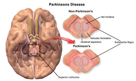 New Parkinson's Disease Chemical Messenger Discovered | Defeat MSA: JGF Foundation for Multiple System Atrophy | Scoop.it
