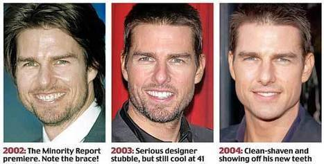 Tom Cruise Face Lift: Fact or Rumor | Celebrity Plastic Surgery News | Scoop.it